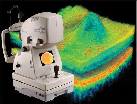 Appareil O.C.T. et exemple de tomographie
