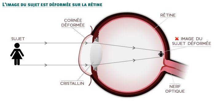 Schéma de l'œil astigmate