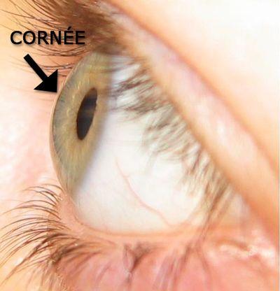 Exemple de cornée saine