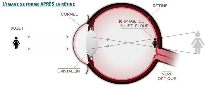 Schéma de l'œil hypermétrope