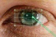Laser et vision