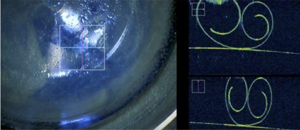 Prélèvement du greffon de cornée DMEK de 20 microns (en double spire à droite de l'image)