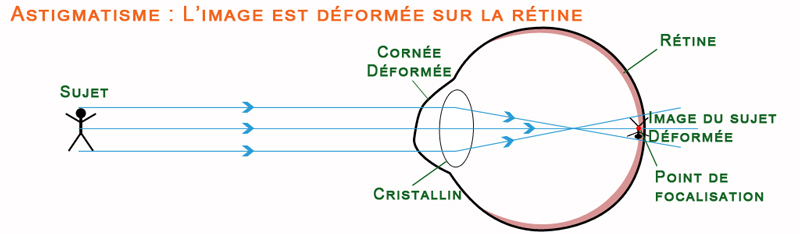 Schéma de la vision chez un astigmate