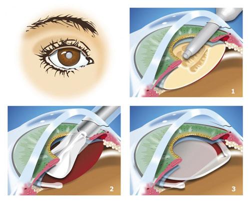 Schéma du déroulement du traitement de la cataracte par phacoémulsification