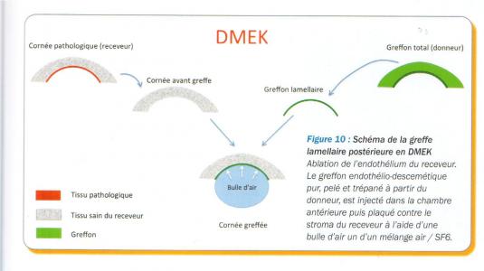 Schéma de la greffe de cornée endothéliale pure (DMEK)