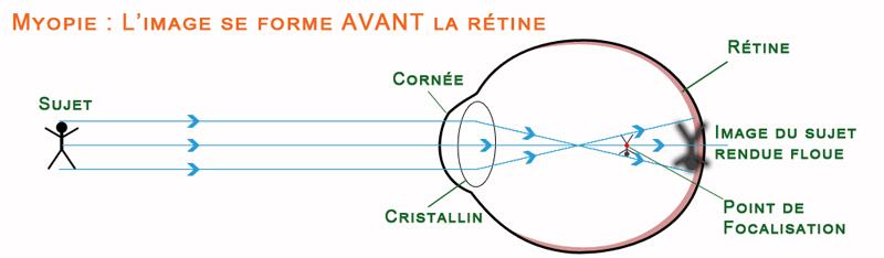 Schéma de la vision chez un myope