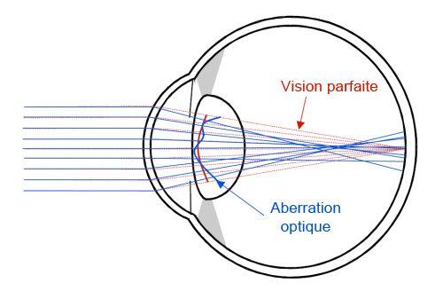 Correction De La Myopie Au Laser Merieme Harouche Le